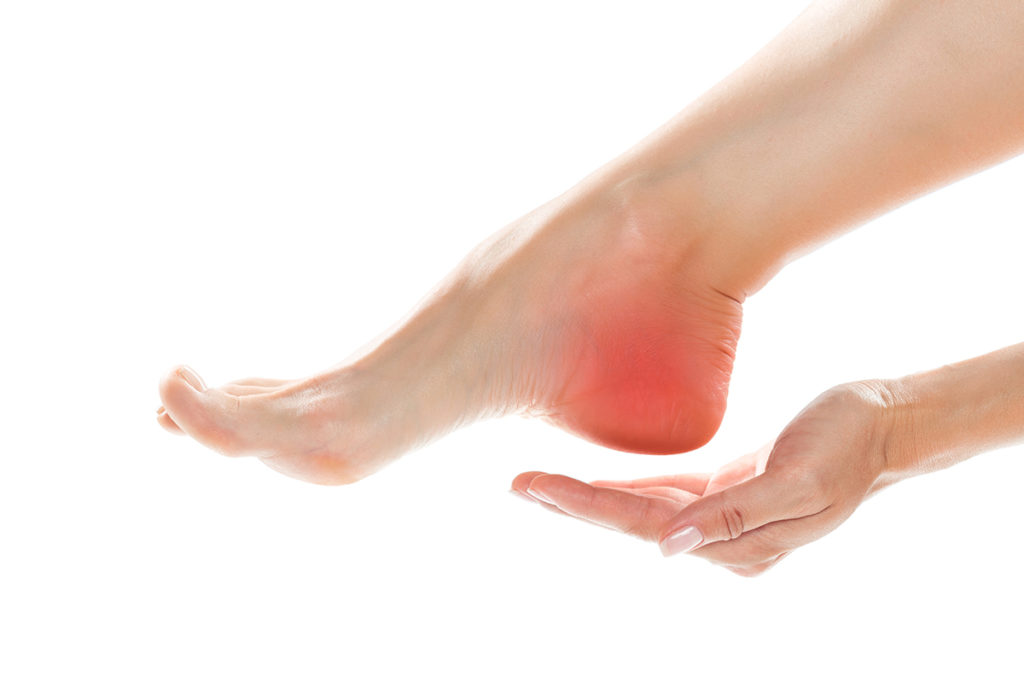 kvinne som har vondt i hælen, vondt i foten, fotplager